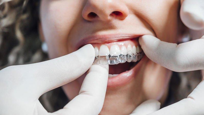 şeffaf diş plağı tedavisi