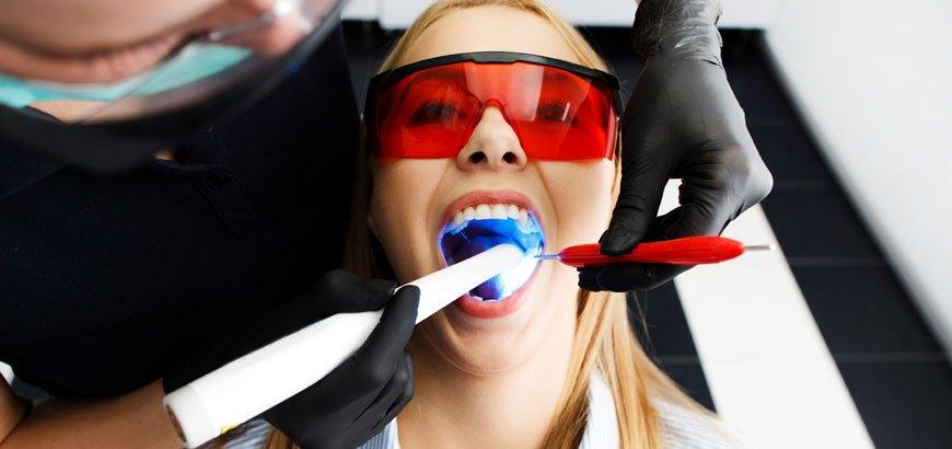 diğer diş beyazlatma yöntemleri