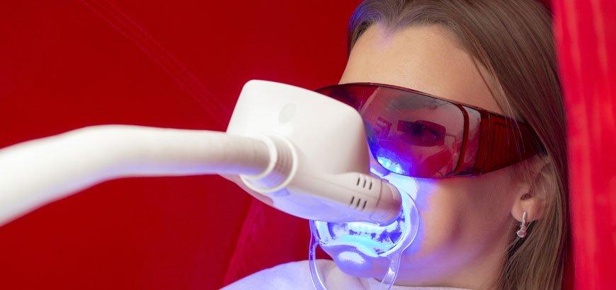 diş beyazlatma bandı nedir neden kullanılır