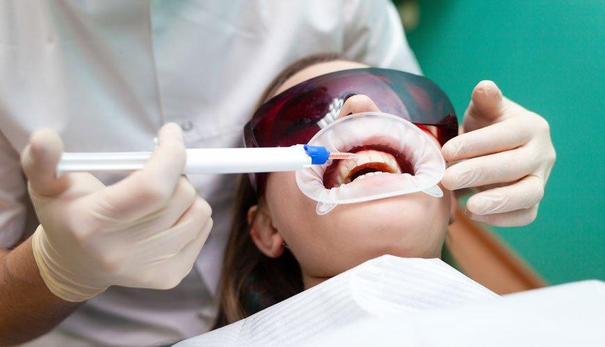 diş beyazlatma jeli hakkında bilinmesi gerekenler