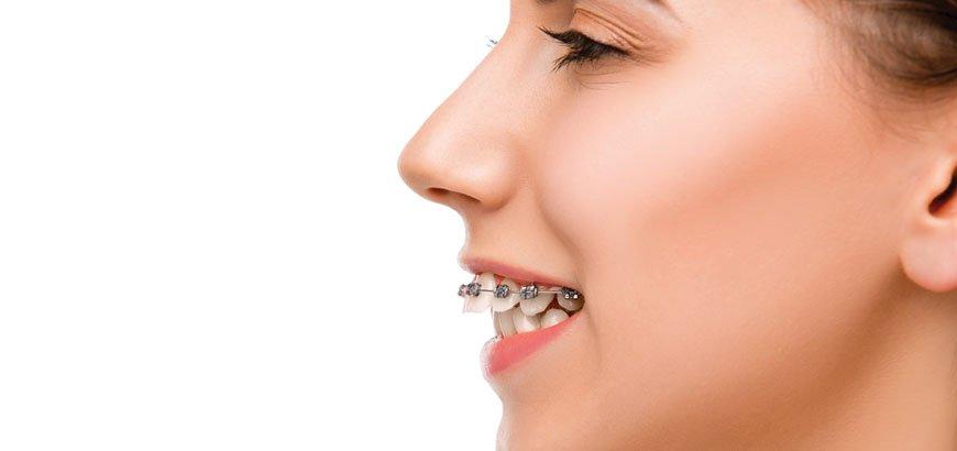 ortodontik diş teli tedavi