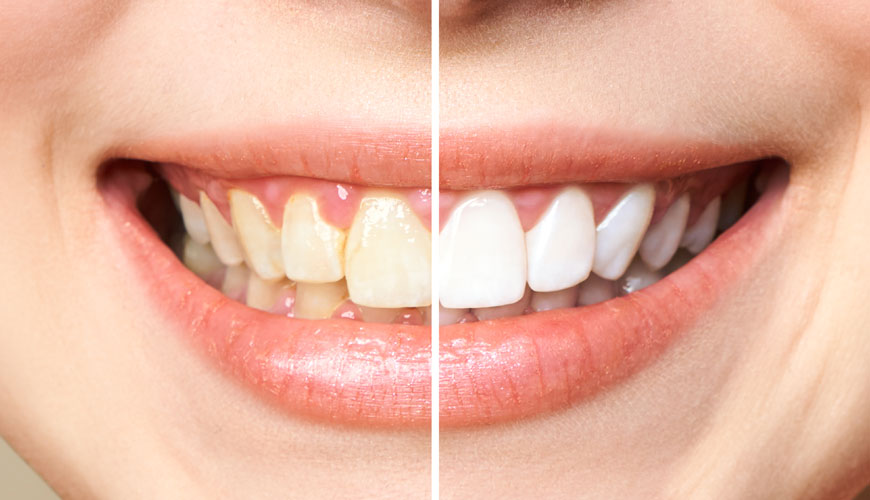 diş beyazlatma bandı kullanmak sağlıklı mı