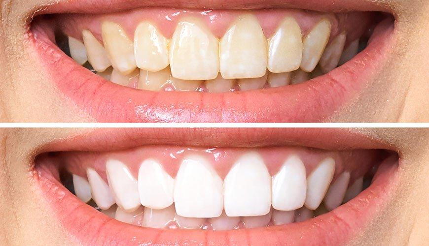 diş beyazlatma ürünü