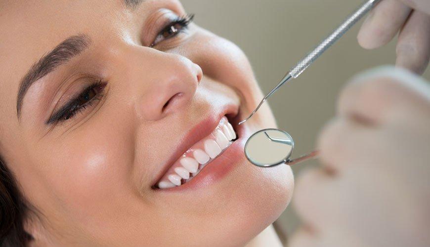 diş beyazlatma uygulaması