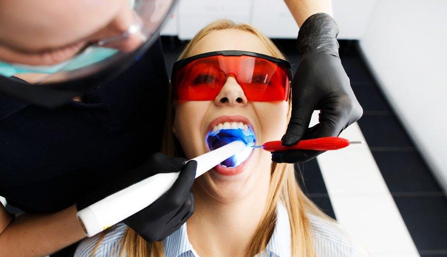 diş beyazlatma işleminden sonra nelere dikkat edilmeli