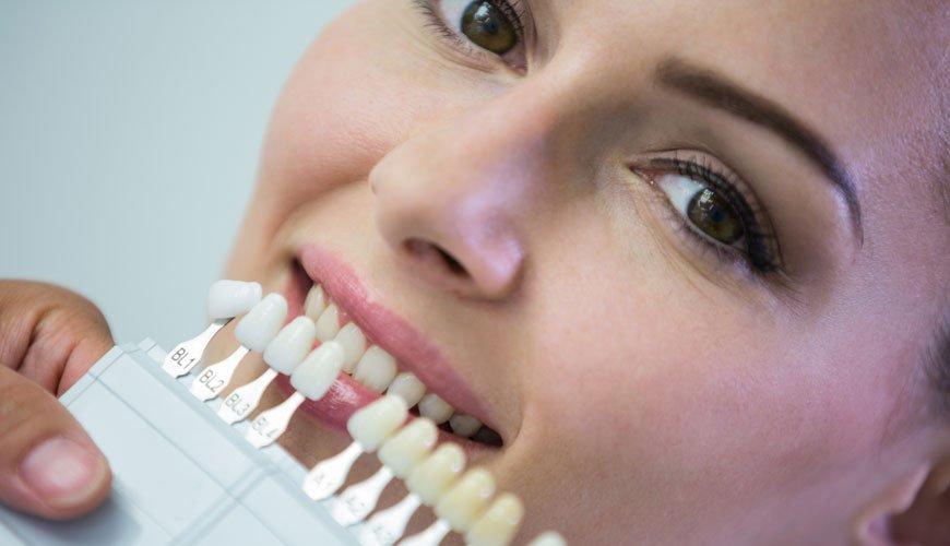 diş beyazlatma nasıl yapılır