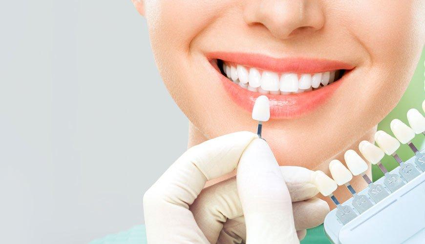diş beyazlatma ne kadar kalıcı olur